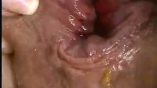 xhamster.com 919309 extreme anal fisting gaping and prolapse